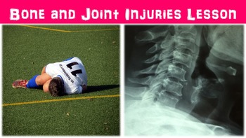 Bone and Joint Injuries No Prep Lesson w/ Power Point, Wor
