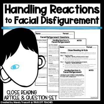 "Close Reading Article ""Handling Reactions to Facial Disfig"