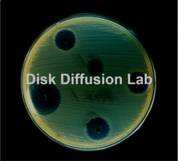 How to Collect Bacteria Samples Using Disk Diffusion