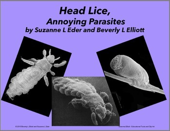 Head Lice, Annoying Parasites seen in Scanning Electron Mi