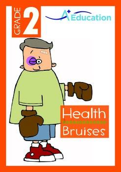 Health - Bruises - Grade 2