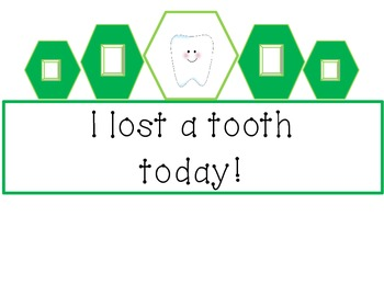 """""""I lost a tooth"""" crown"""