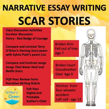 Scar Stories, Narrative Writing, CCSS, Short Story, Compar